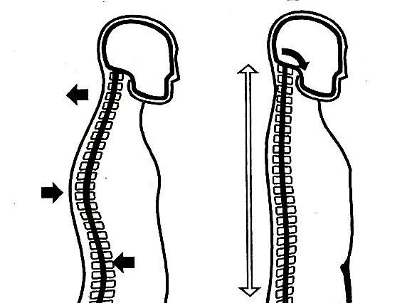 Профилактика сколиоза и плоскостопия кратко