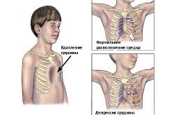 Схема сколиоза грудного отдела