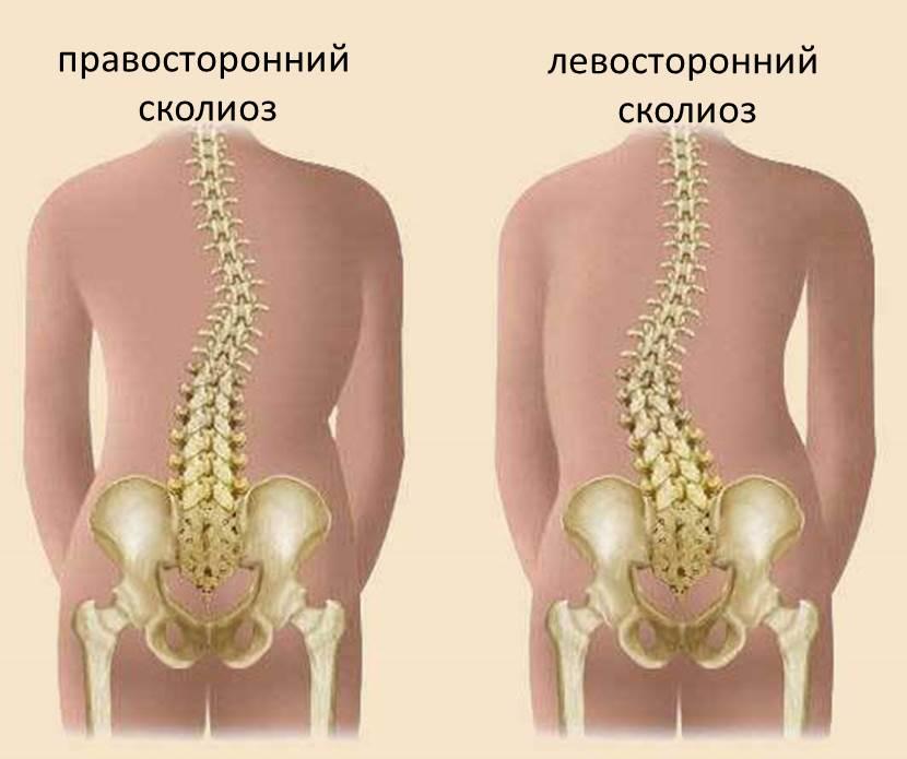 Гимнастика при сколиозе 3 степени грудного отдела