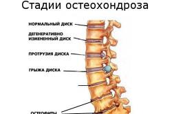 Остеохондроз - причина боли в пояснице