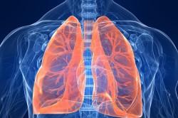 Туберкулез - причина кривошеи