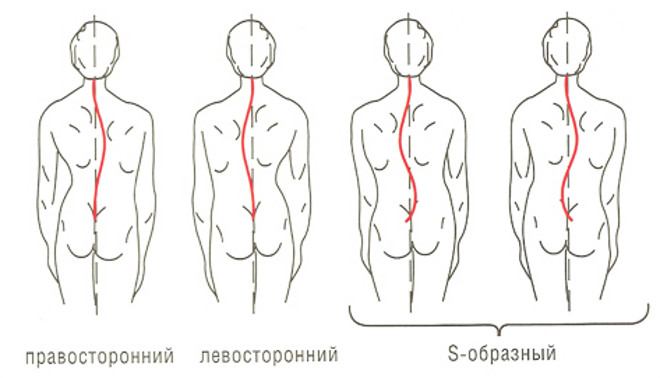 Операбельное лечение сколиоза