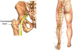 Защемление седалищного нерва - причина прострела в пояснице