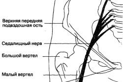 Блокада седалищного нерва
