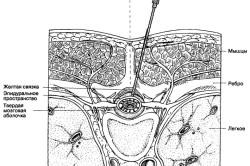 Схема эпидуральной блокады позвоночника