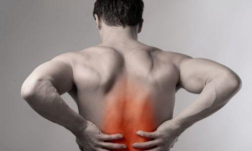 Сильная боль в мышцах спины