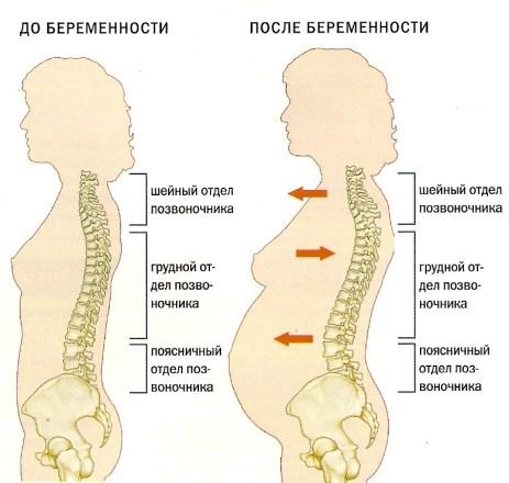 Клиническое течение остеохондроза позвоночника