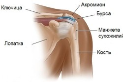 Схема бурсита плечевого сустава
