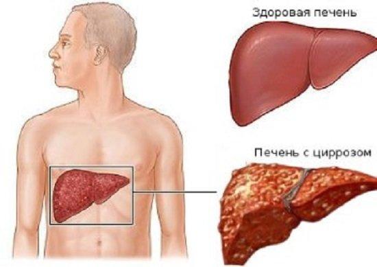 Лекарственные препараты лечения позвоночника