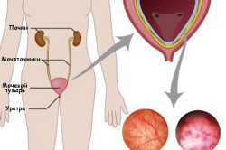 Здоровый мочевой пузырь и цистит
