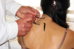 Эффективность лечения гирудотерапией