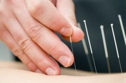 Польза иглоукалывания при спондилолистезе
