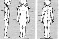 Иллюстрация здорового позвоночника и детского сколиоза