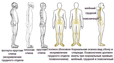 Комплекс упражнений лфк при нарушение осанки
