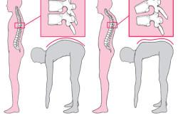 Схема гиперкифоза грудного отдела позвоночника