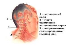 Схема расположения затылочных нервов