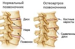 Схема остеоартроза позвоночника