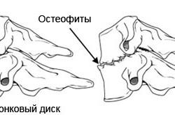Остеофит - причина стеноза позвоночника