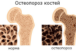 Остеопороз - причина нарушения грудного отдела позвоночника