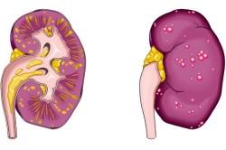 Пиелонефрит - причина поясничных болей