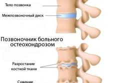 Схема позвонков при остеохондрозе