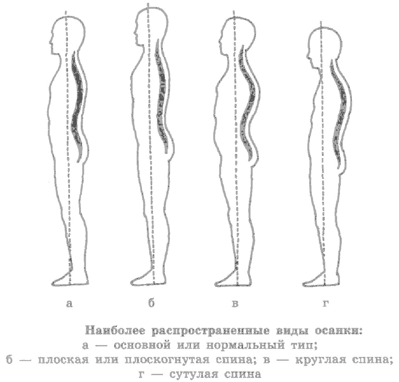 Презентация по профилактике нарушения осанки и плоскостопия в доу