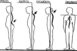 Искривления позвоночника в сагиттальной и фронтальной плоскостях