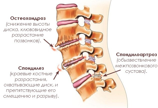 Спондилез позвоночного канала шейного отдела
