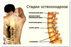 Остеохондроз как причина боли в лопатке