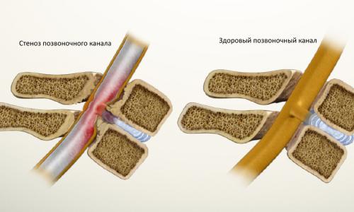 Сравнение здорового позвоночного канала и стеноза