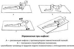 Гимнастика при кифозе грудного отдела позвоночника