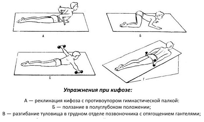 Лфк грудной отдел позвоночника кифоз
