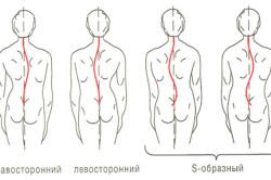 Виды сколиоза грудного отдела позвоночника