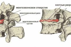 Схема шейно грудного остеохондроза