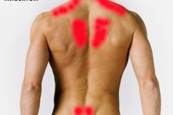 Зоны миозита на спине