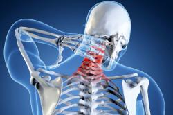 Протрузия позвоночника шейного отдела