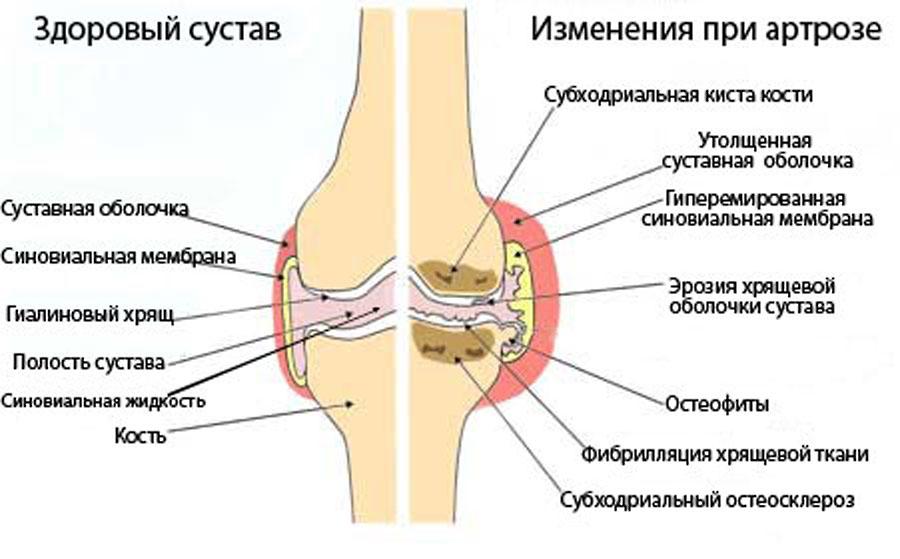 можно ли заниматься спортом при болезни шляттера коленного сустава