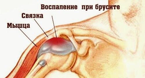фармакопунктура при остеохондрозе отзывы