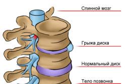 Межпозвоночная грыжа как причина защемления нерва