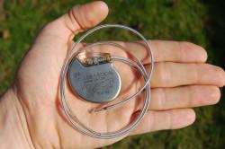 Наличие кардиостимулятора как противопоказание к проведению МРТ