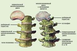 Схема шейного остеохондроза