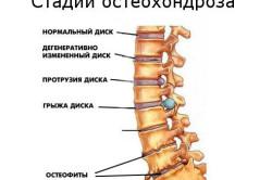 Остеохондроз - причина патологического лордоза