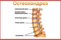 osteohondroz3-250x166