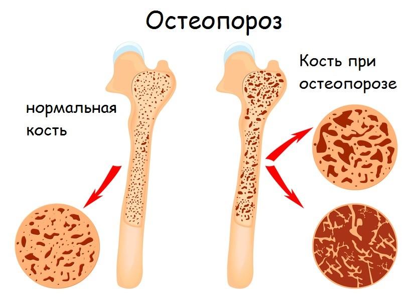 Симптомы высокая температура боли в пояснице