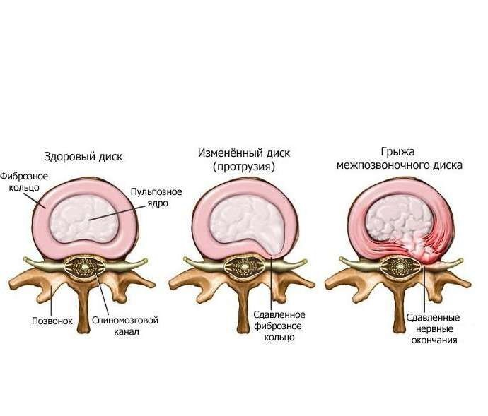 Лечение остеохондроза грыж грудного и шейного отделов