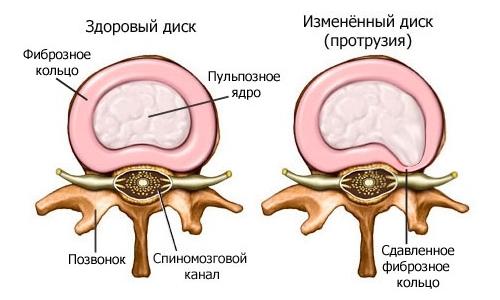 Видео-физические упражнения от болей в спине