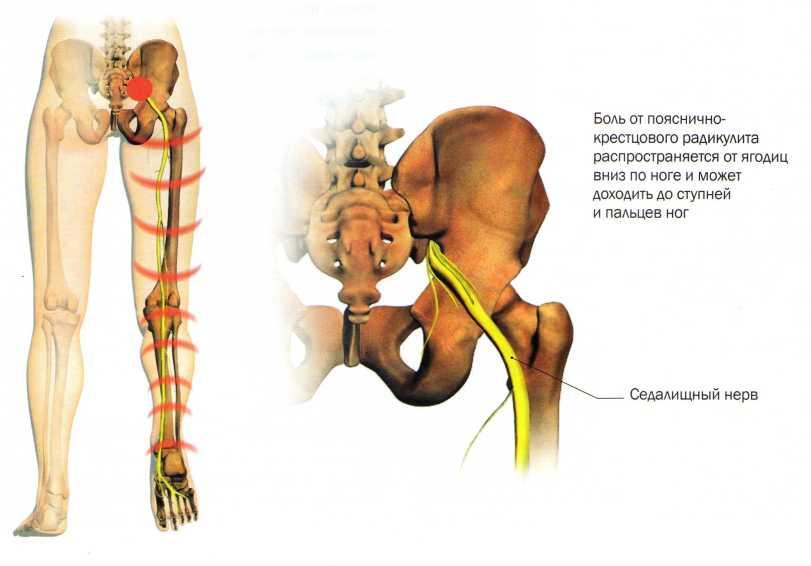 Пояснично крестцовый отдел как лечить симптомы