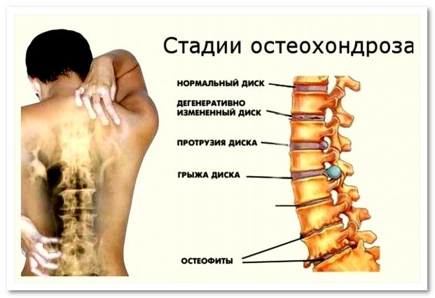 Алмаг инструкция по применению шейный остеохондроз
