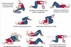 Упражнения при грыже в поясничном отделе позвоночника