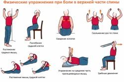 Комплекс упражнений при шейно-грудном остеохондрозе
